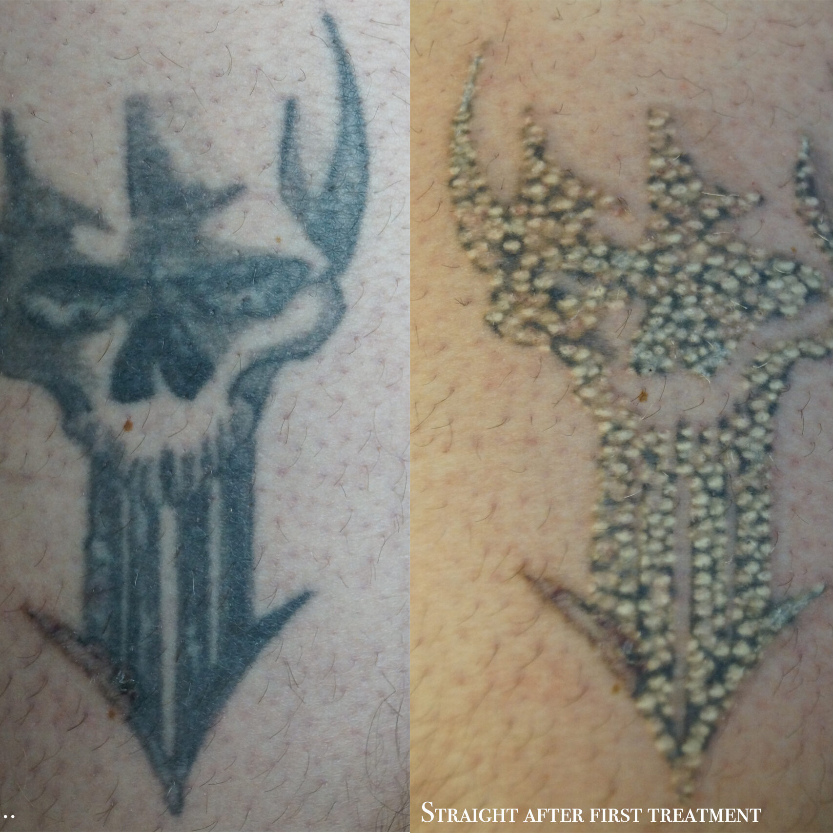 Laser removal inkedmoose for Post laser tattoo removal